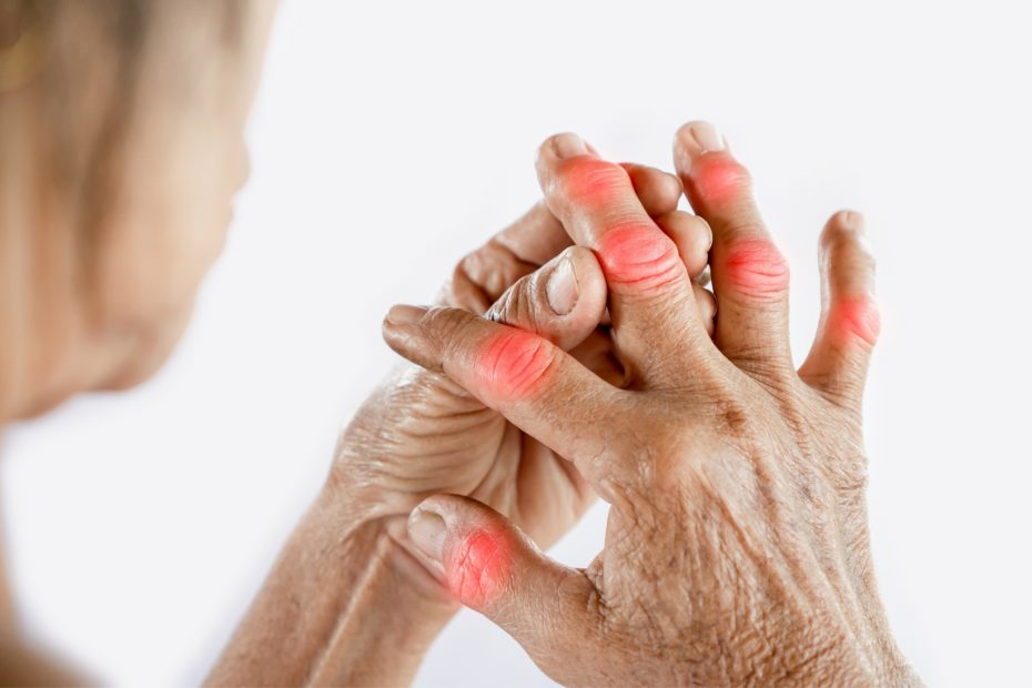 a woman with arthritis in her hands.