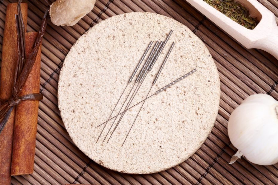 Acupuncture needles laying on the stone mat and herbs like garlic. TCM Traditional Chinese Medicine concept photo.